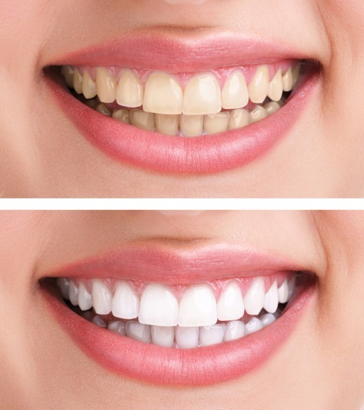 Teeth Whitening in St. Albert
